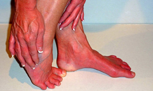 A woman with red feet and hands.